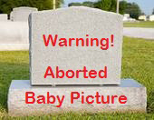 Aborted Babies
